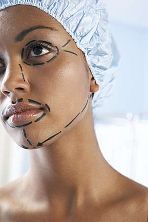 Plastic surgery incision lines drawn on a young girl's face before a facelift.